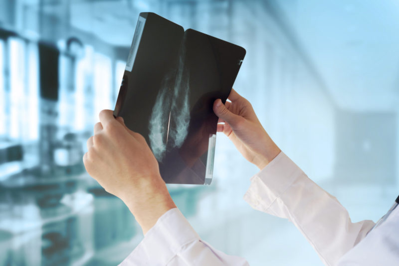 Doctor-mammography-results